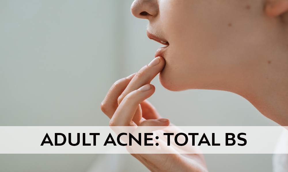 What Causes Acne? Adult Acne: Total BS.